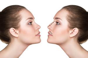 Ile kosztuje operacja zmniejszenia nosa?